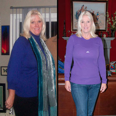 medical weight loss patient