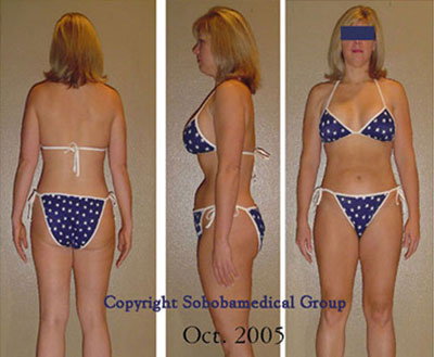 testimonials medical weight loss patient soboba